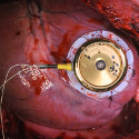 Image - Batteryless cardiac pacemaker design based on automatic wristwatch